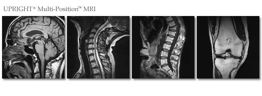 Stand-Up MRI of Brooklyn, NY